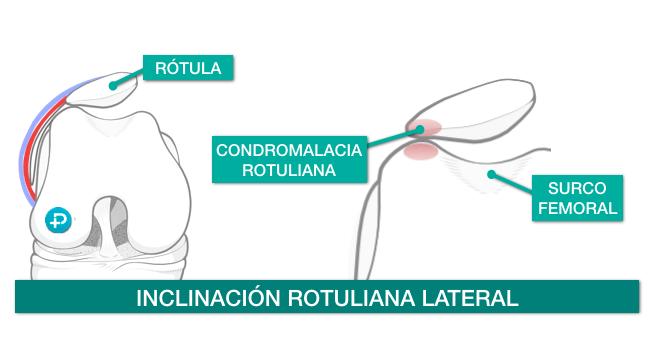 sindrome de hiperpresión rotuliana lateral