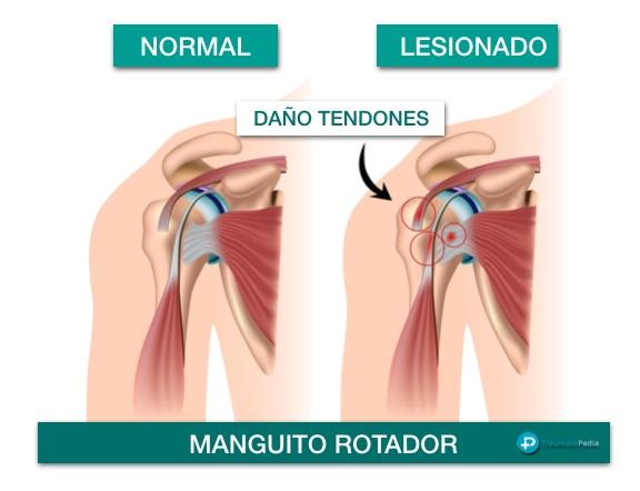 tendones manguito rotador