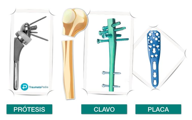 tipos cirugía fractura humero