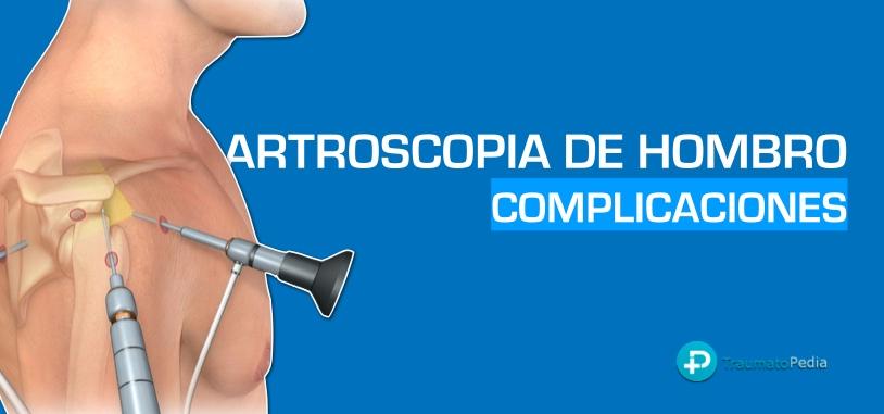 Complicaciones artroscopia de hombro