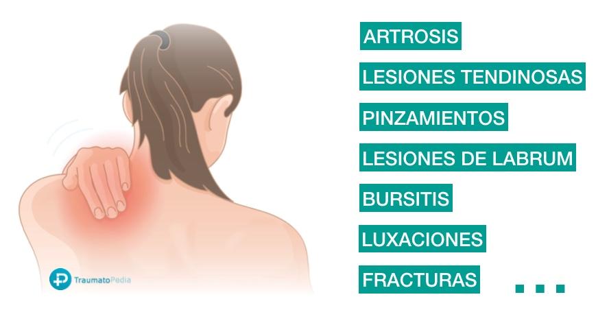 causas más frecuentes de dolor hombro