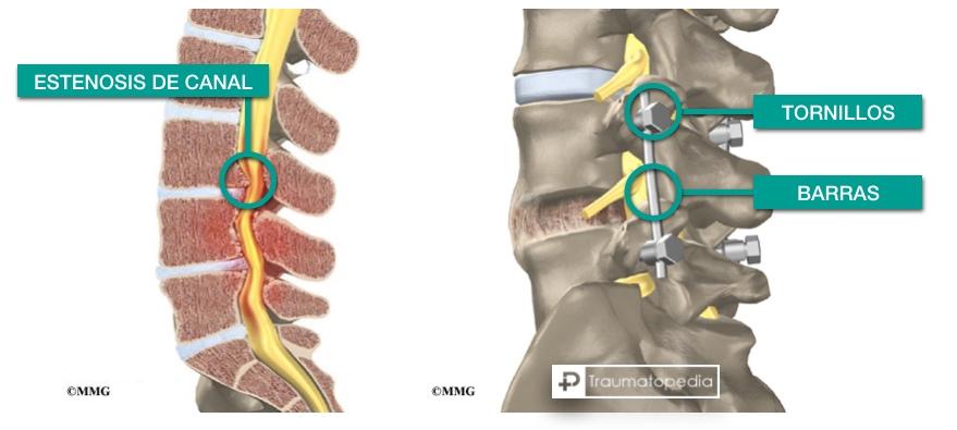 estenosis de canal cirugia