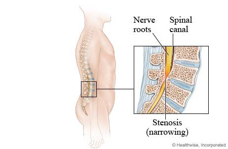 estenosis-de-canal-laminectomia