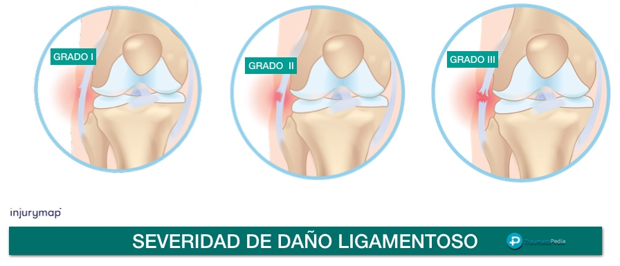 grados rotura ligamento rodilla