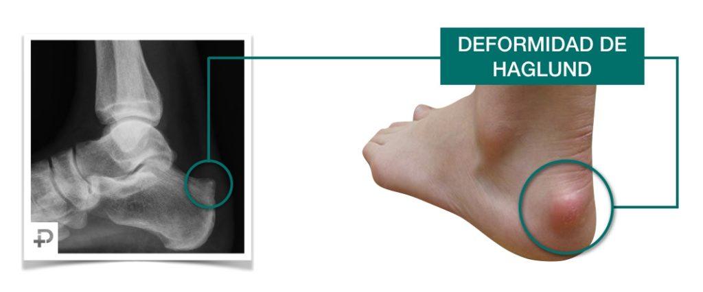 Deformidad de haglund - Bulto pie, radiografía