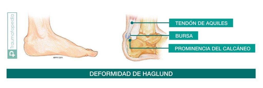 Bulto en el talón que duele - enfermedad de haglund