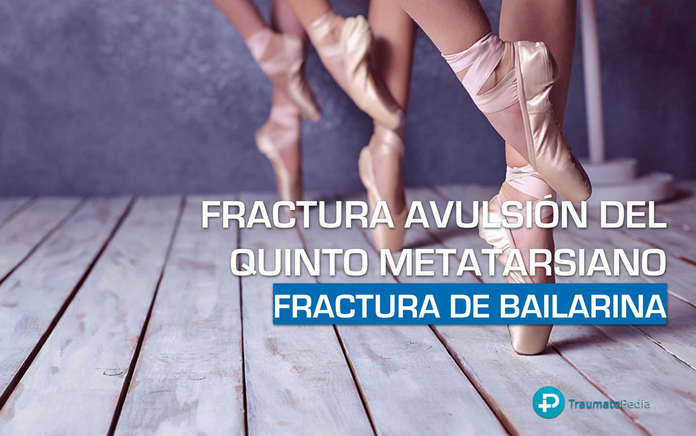 fractura avulsión quinto metatarsiano bailarina
